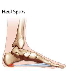 Pain Of The Heel